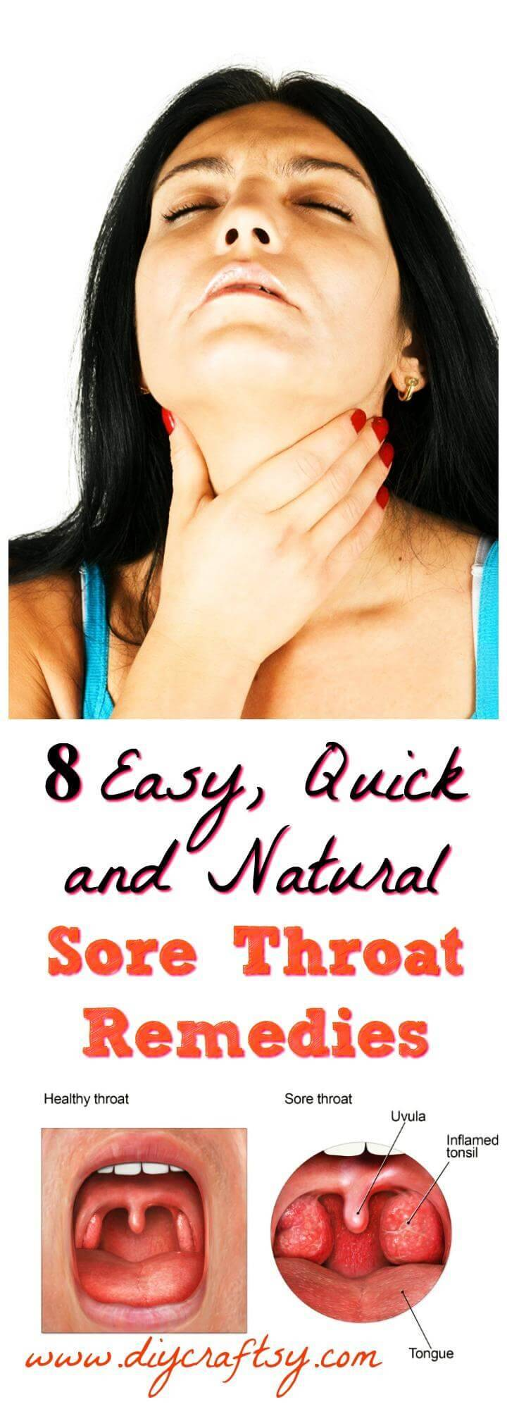 Sore Throat Remedies