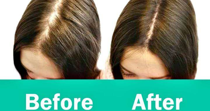 How to Regrow Hair - Best & Natural Ways to Regrow Hair - Before & After