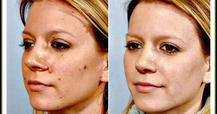 How To Remove Flat Moles On Face At Home Naturally